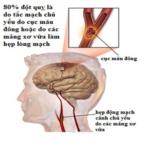 Đột quỵ có thể phòng ngừa
