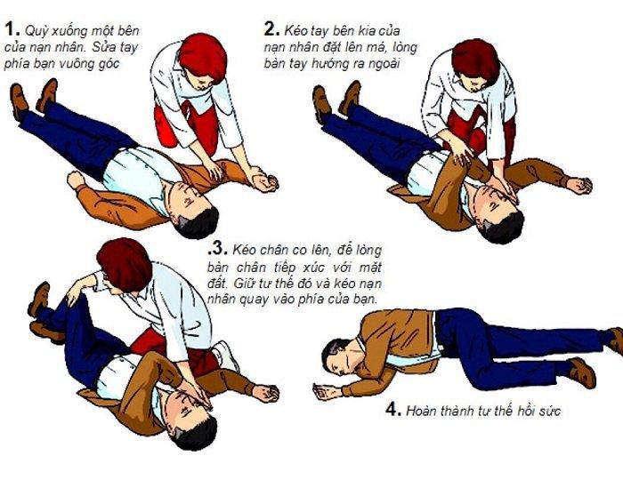 Cách sơ cứu đột quỵ